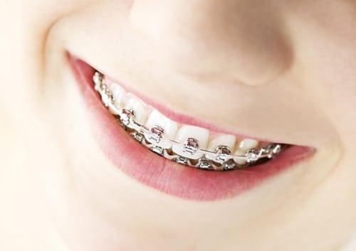 Braces on Teeth John A Gerling DDS MSD McAllen TX
