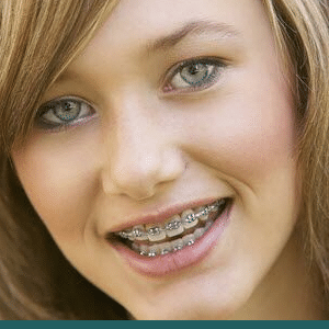 Braces McAllen Orthodontic Group McAllen TX