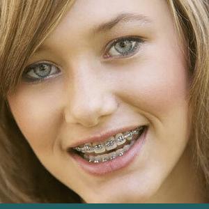 Braces McAllen Orthodontic Group McAllen TX