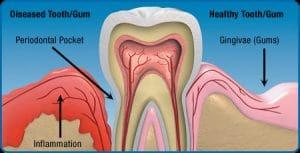 Gum Disease McAllen TX