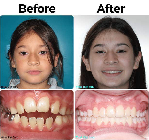 Before and After picture 6 at McAllen Orthodontic Group in McAllen, TX
